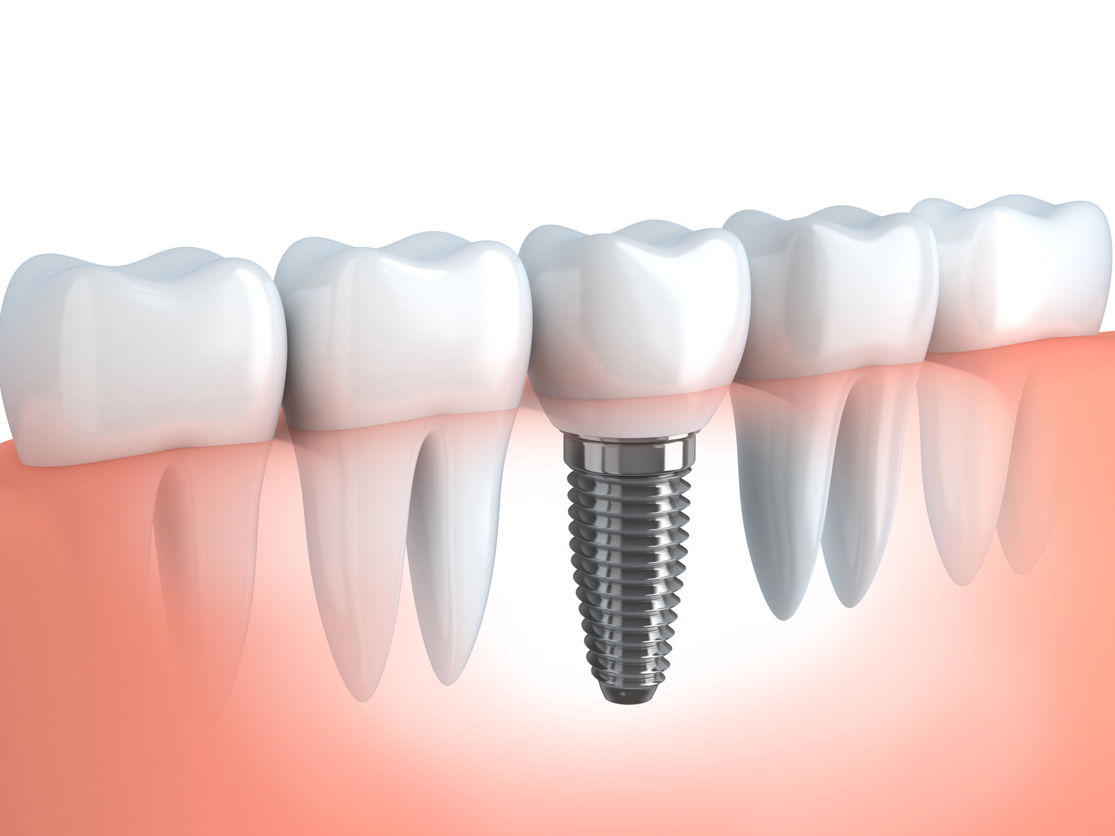 Implant dentaire : Un implant pour qui ?